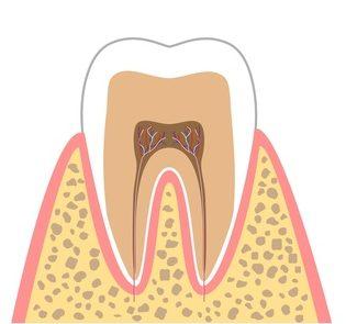 CO:むし歯の始まり