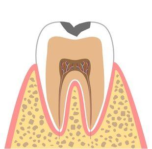 C1:痛みを感じないむし歯