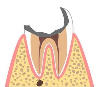 C4:むし歯の末期状態
